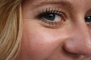 Le Botox est-il le remède à toutes les rides du visage ?